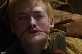 prince joffrey dies